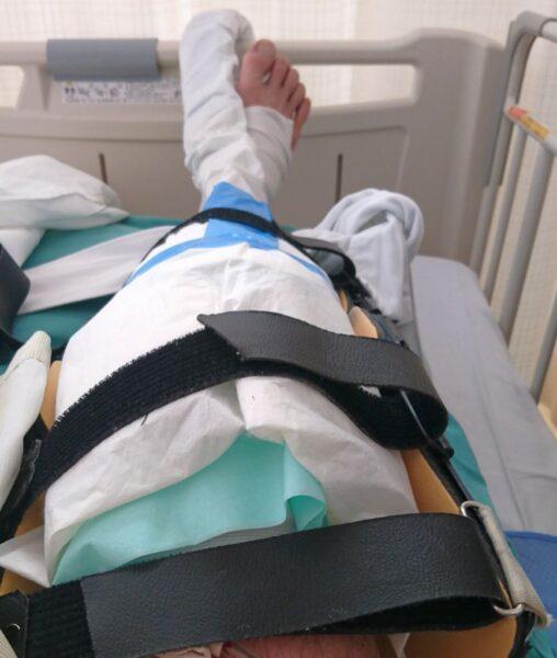ACL再建手術後の状態
