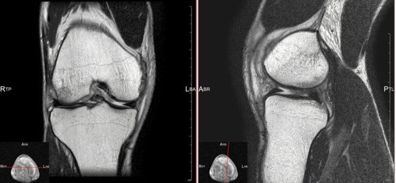 受傷翌日のMRI画像(右膝)