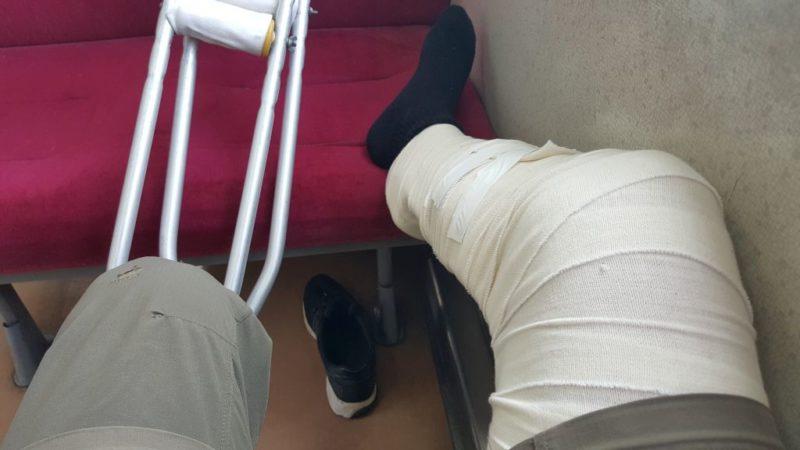 シーネで固定した右脚