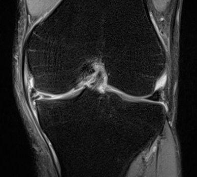 半月板素損傷のMRI画像
