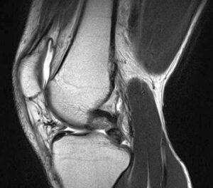 左膝のMRI画像