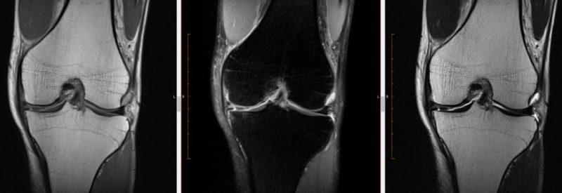 MRI強調画像の比較